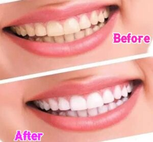 Whiten Teeth With bicarbonate